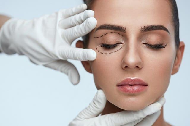 Cirugia-estetica-Blefaroplastia