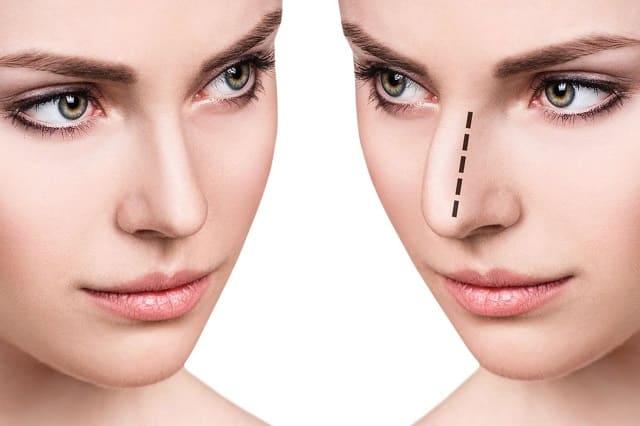 Cirugia-estetica-Nariz